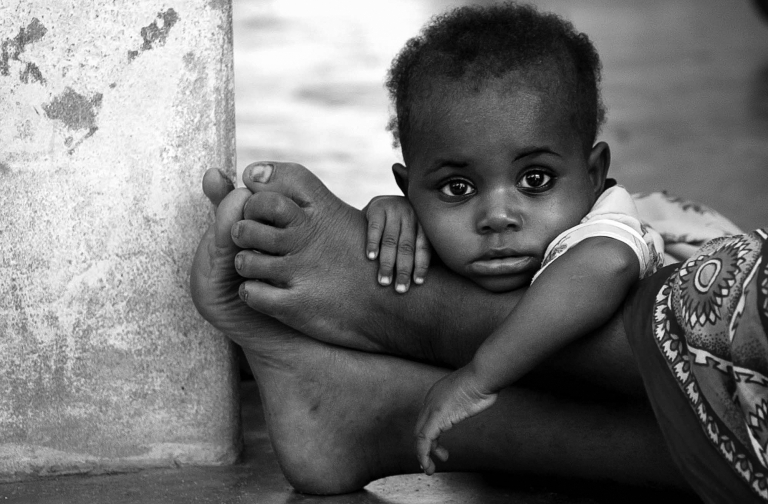 A child waits for medical attention on the feet of her mother at the Nungwi Beach clinic in Zanzibar, Tanzania by travel photographer Kira Vos.